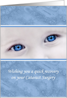 Wishing You A Quick Recovery On Your Cataract Surgery Blue Eyes card